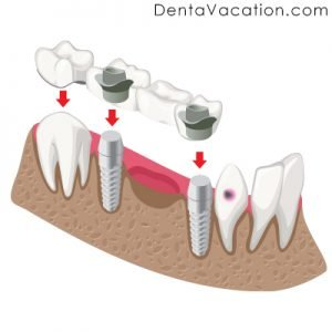 Dental Implant Bridge in Colombia