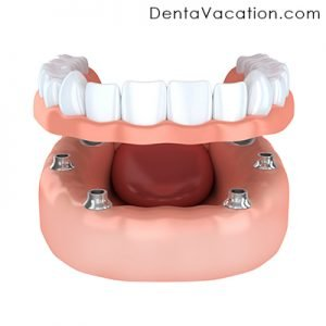 Implant Denture in Colombia