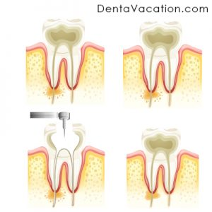 Root Canal Treatment | RCT in Cabo