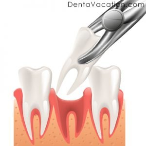 Tooth Extraction in Cabo