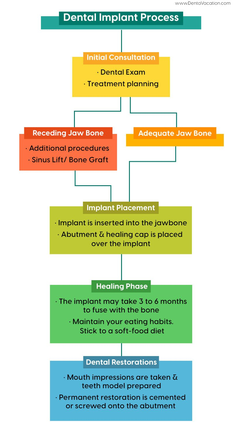 Implant Process Abroad