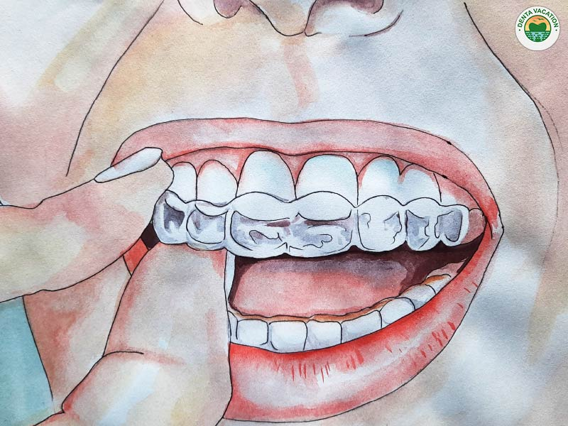 Clear Aligners in Nogales, Sonora
