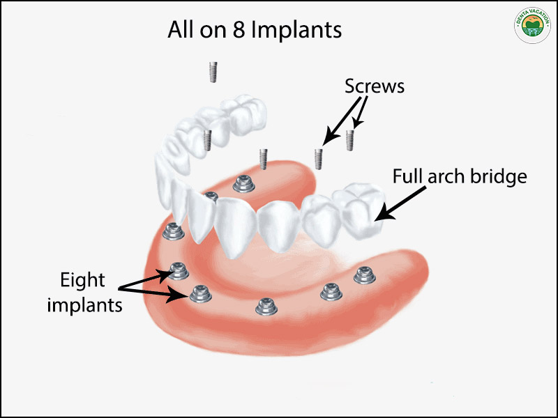 All on 8 Dental Implants Abroad