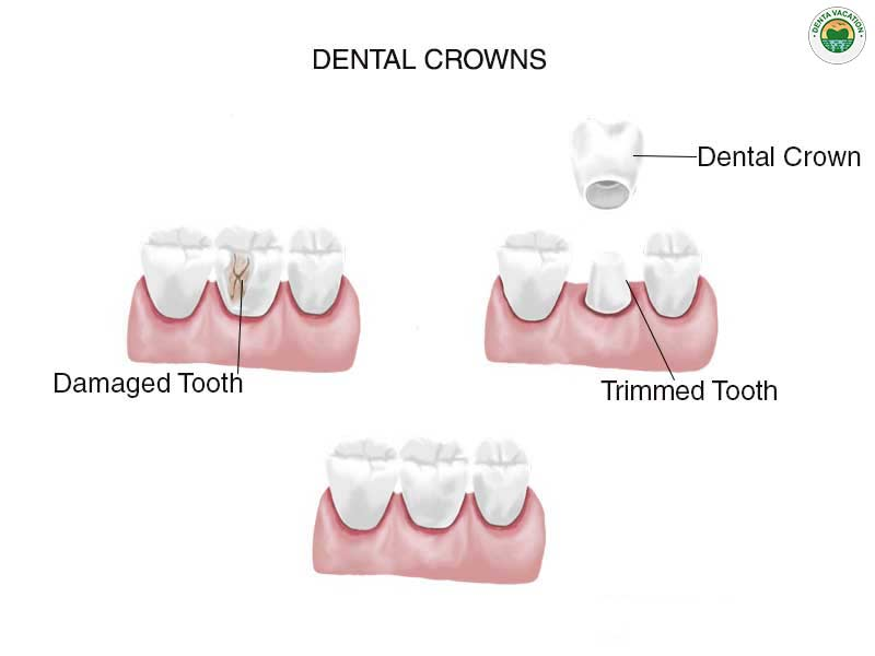 Low Cost Dental Crowns Abroad