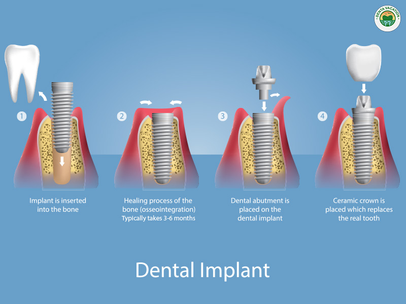 Osseointegration in implants (3-6 months)