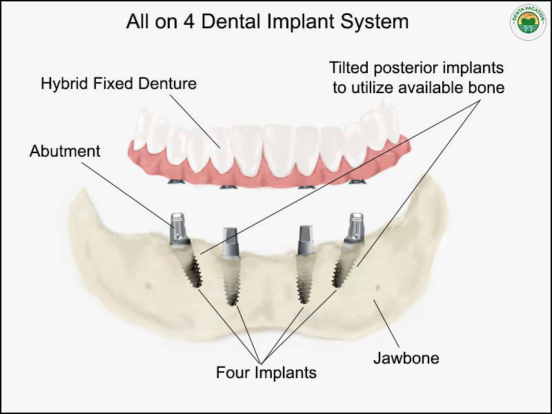 All on 4 dental implants abroad