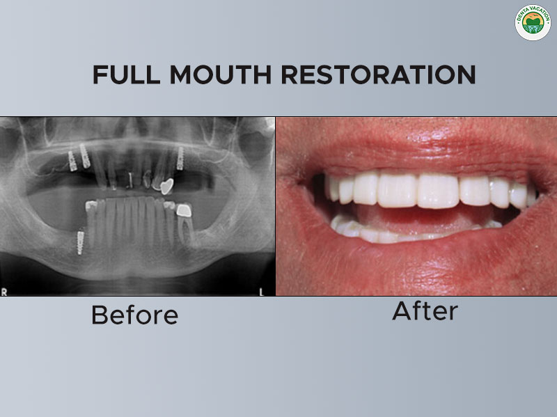 Full Mouth Restoration: Before & After