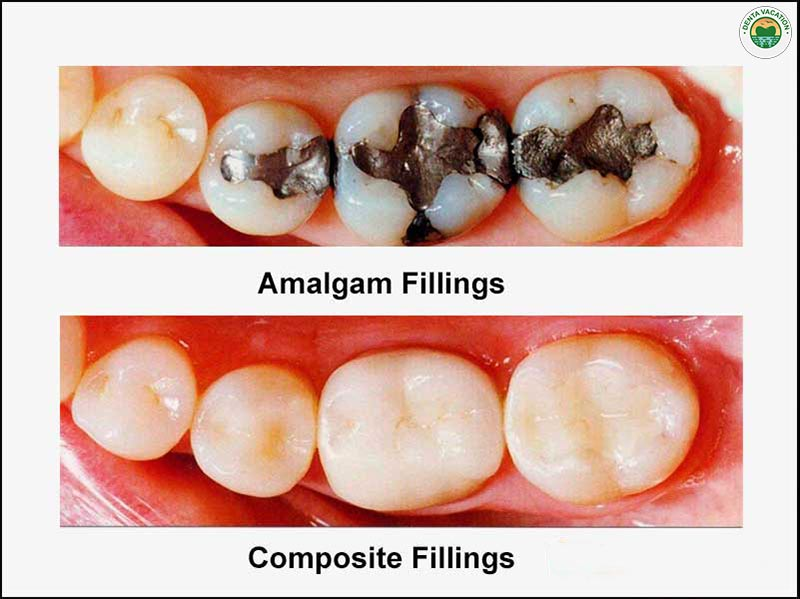 Affordable fillings abroad